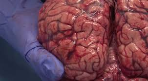 Central nervous system vascular malformations