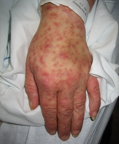 Chapare Hemorrhagic Fever