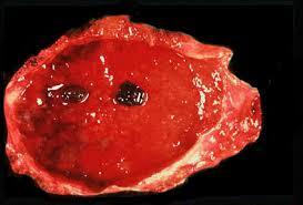 Cholecystitis