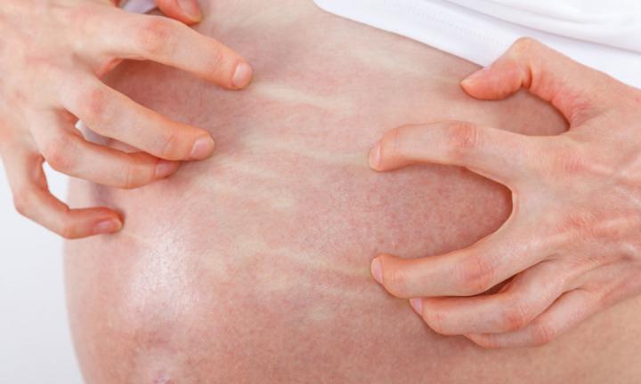 Cholestasis of Pregnancy