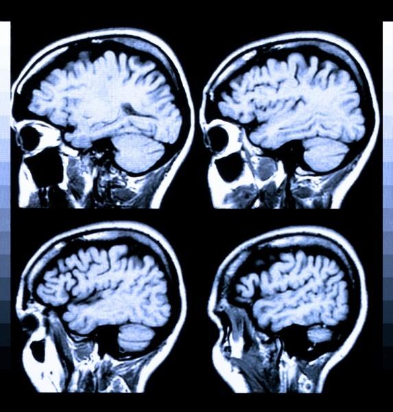 Chronic traumatic encephalopathy | China| PDF | PPT| Case ...