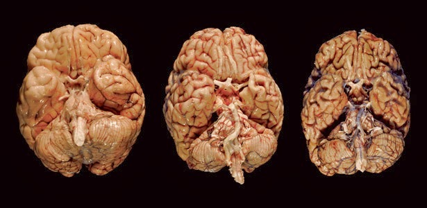 Хроническая энцефалопатия головного мозга