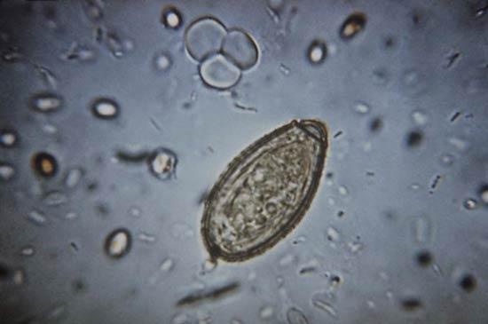 Clonorchiasis