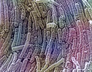 Clostridium difficile Infection