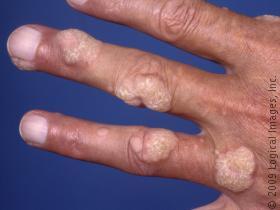 Common warts