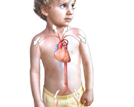 Congenital heart defects in children
