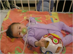Congenital Myasthenic Syndromes