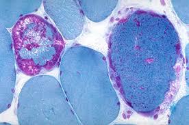 Congenital Myopathies