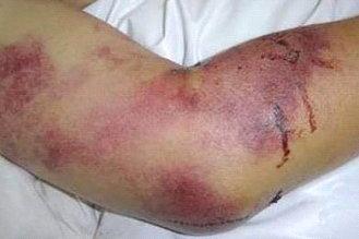 Crimean-Congo hemorrhagic fever