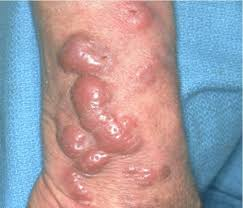Cutaneous T-Cell Lymphoma
