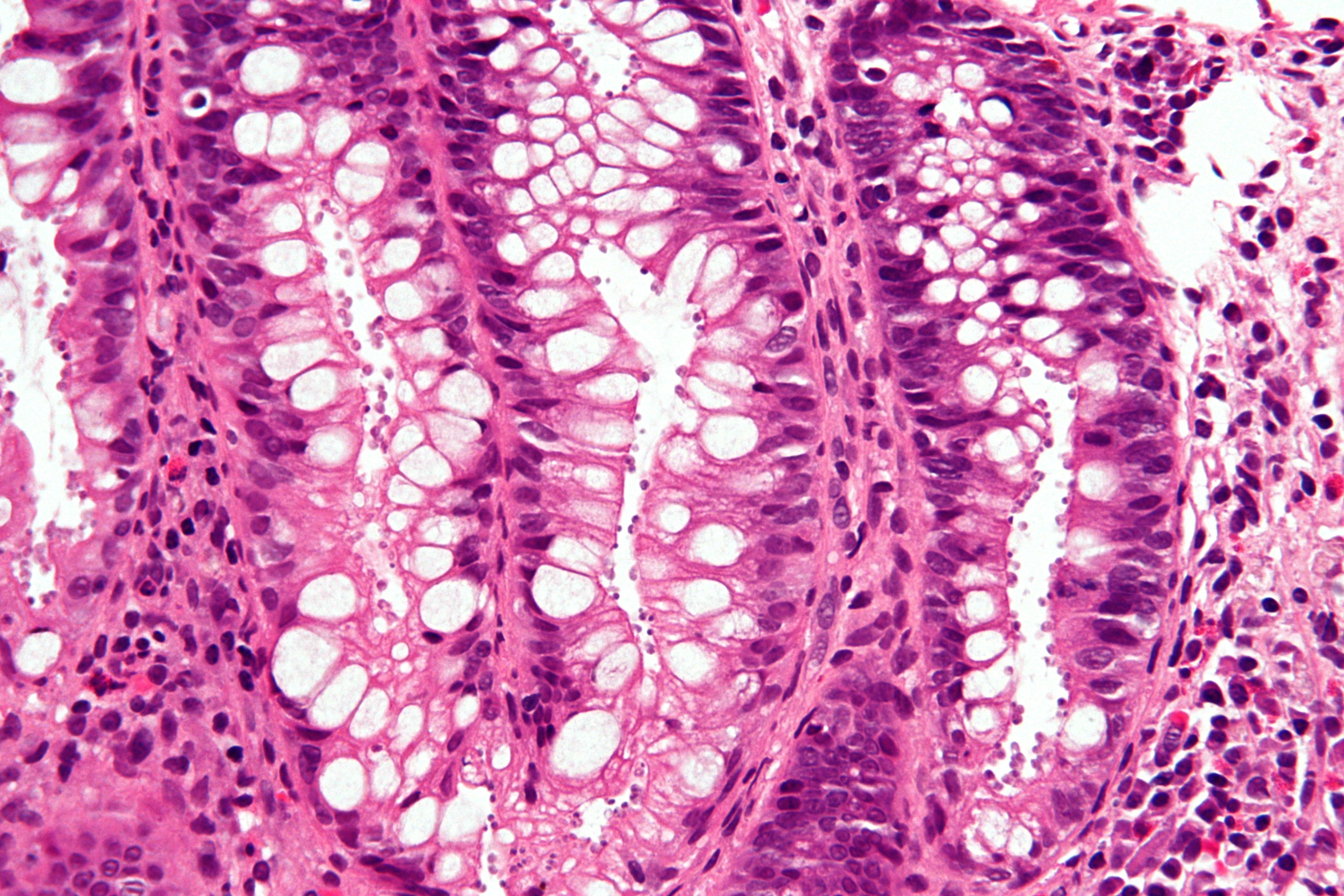 Cyclosporiasis