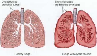 Cystic Fibrosis