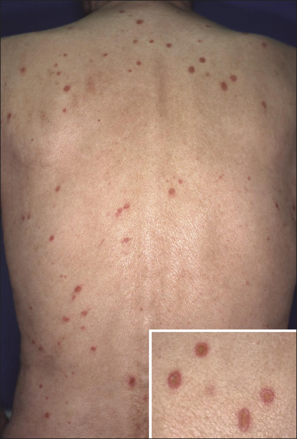 Cytomegalovirus