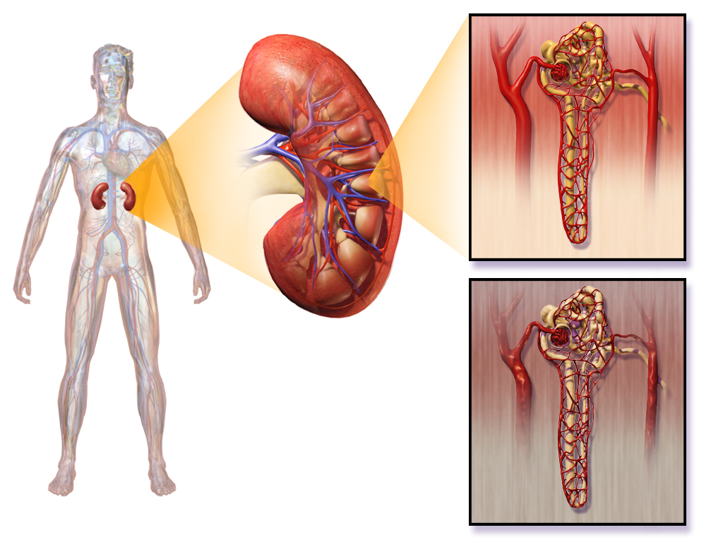 Diabetic Nephropathy | India| PDF | PPT| Case Reports | Symptoms ...