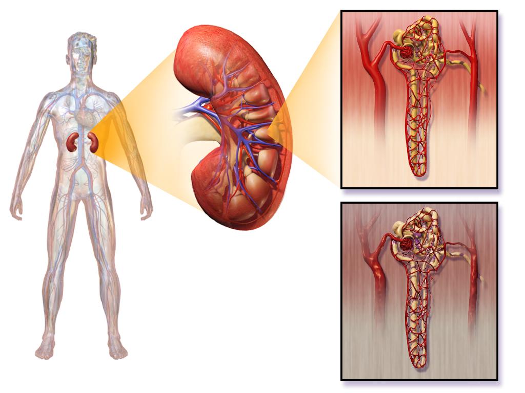 Diabetic Nephropathy