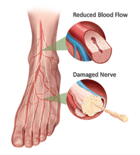what causes neuropathy in your feet