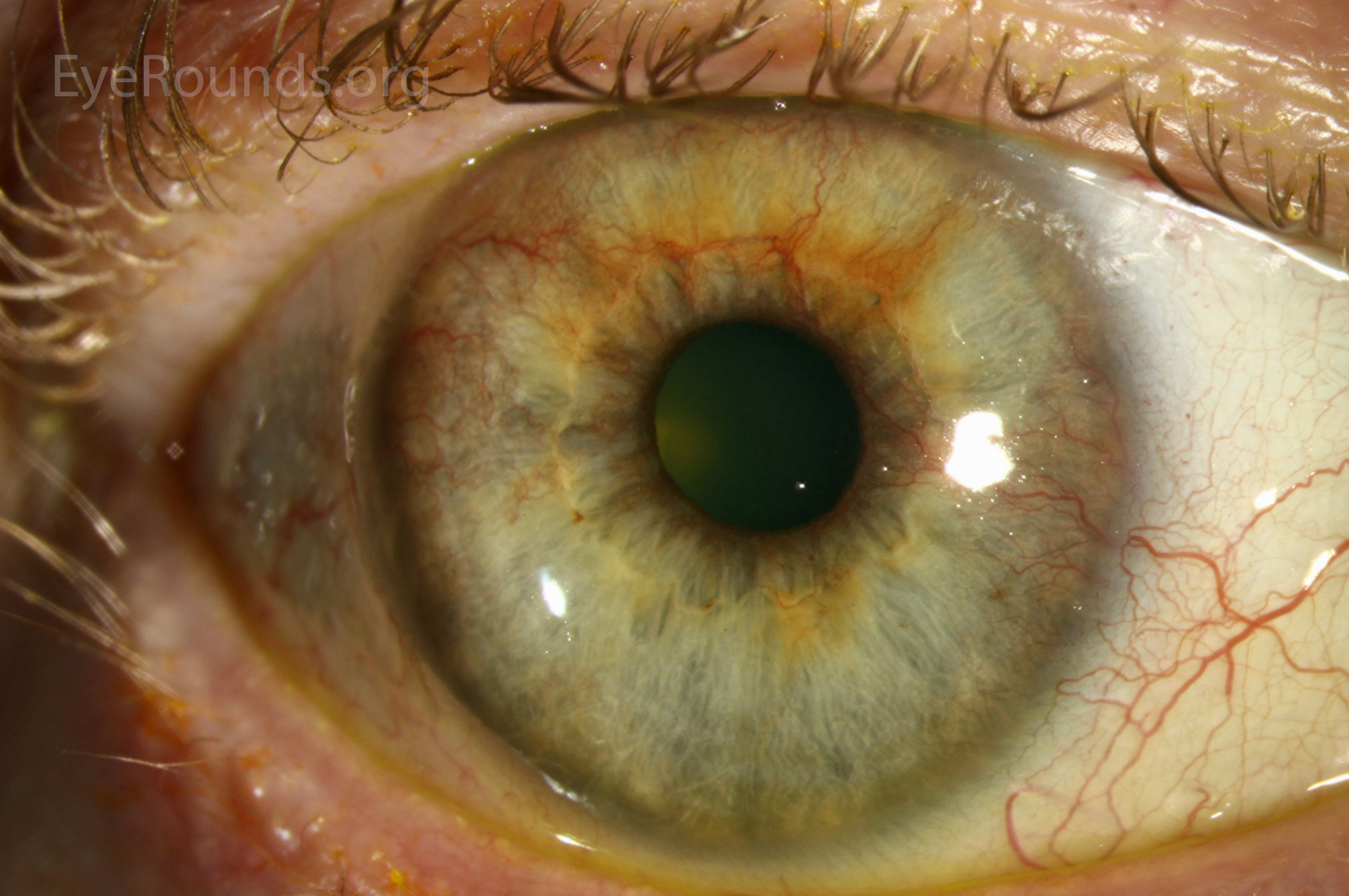 intravitreal steroid implant