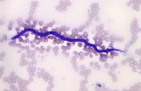 Dientamoeba fragilis Infection