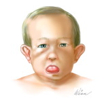 DiGeorge Syndrome