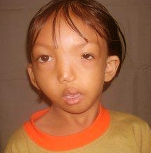 DiGeorge Syndrome | Norway| PDF | PPT| Case Reports ...