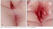Dipylidium Infection