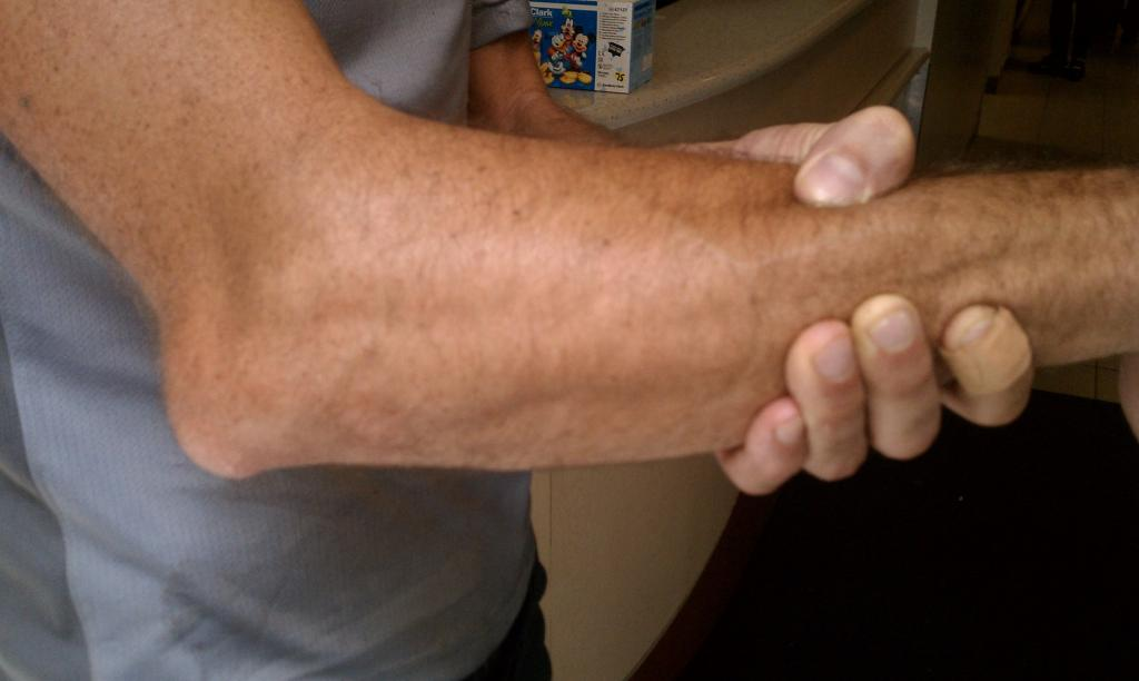Dislocated elbow