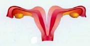 Double uterus