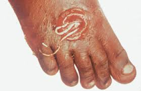 dracunculus medinensis guinea worm disease Dracunculus medinensis or guinea worm is a nematode that causes dracunculiasis, also known as guinea worm disease the disease is caused by the female which, at up to 800 mm (31 in) in.