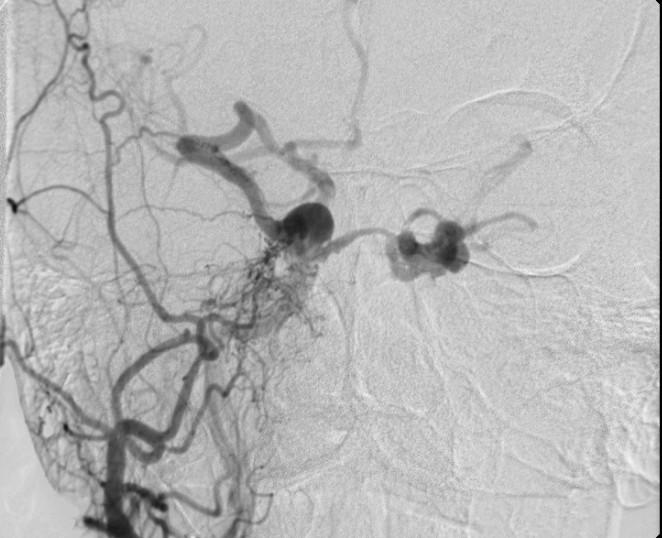 Dural Arteriovenous Fistulas