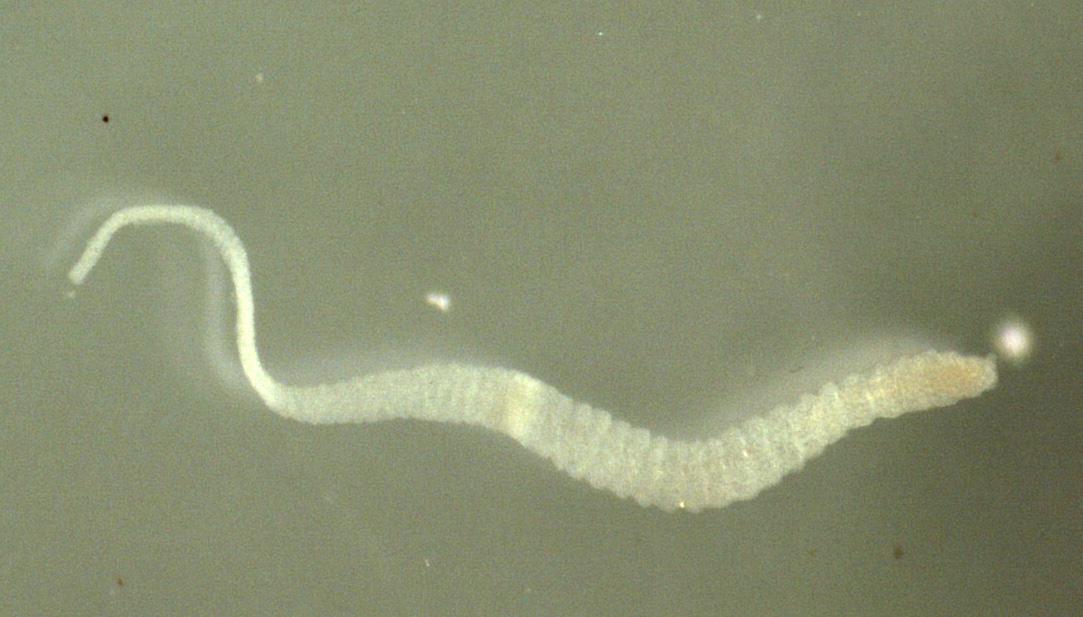 Dwarf Tapeworm | Norway| PDF | PPT| Case Reports | Symptoms