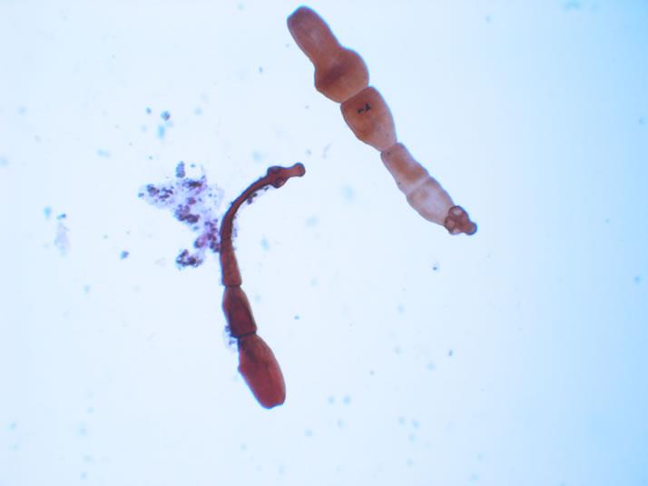 Dwarf Tapeworm
