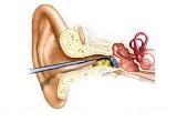 Earwax blockage
