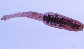 Echinococcosis