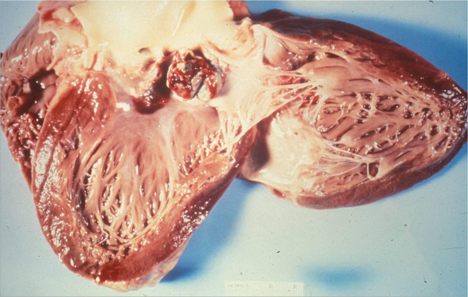 Endocarditis   Austral...