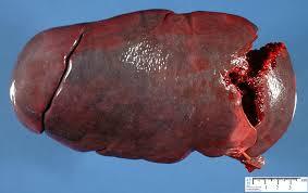 Enlarged Spleen