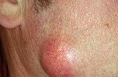 Epidermoid (sebaceous) cysts