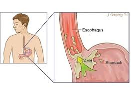 Esophageal spasms
