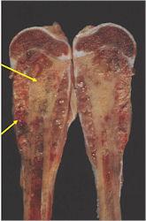 ewing sarcoma cancer gel pentru negi genitale și papiloame
