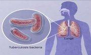 Extensively Drug Resistant TB