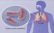 Extensively Drug Resistant TB