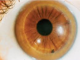 Eye melanoma