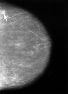 Fibrocystic breasts