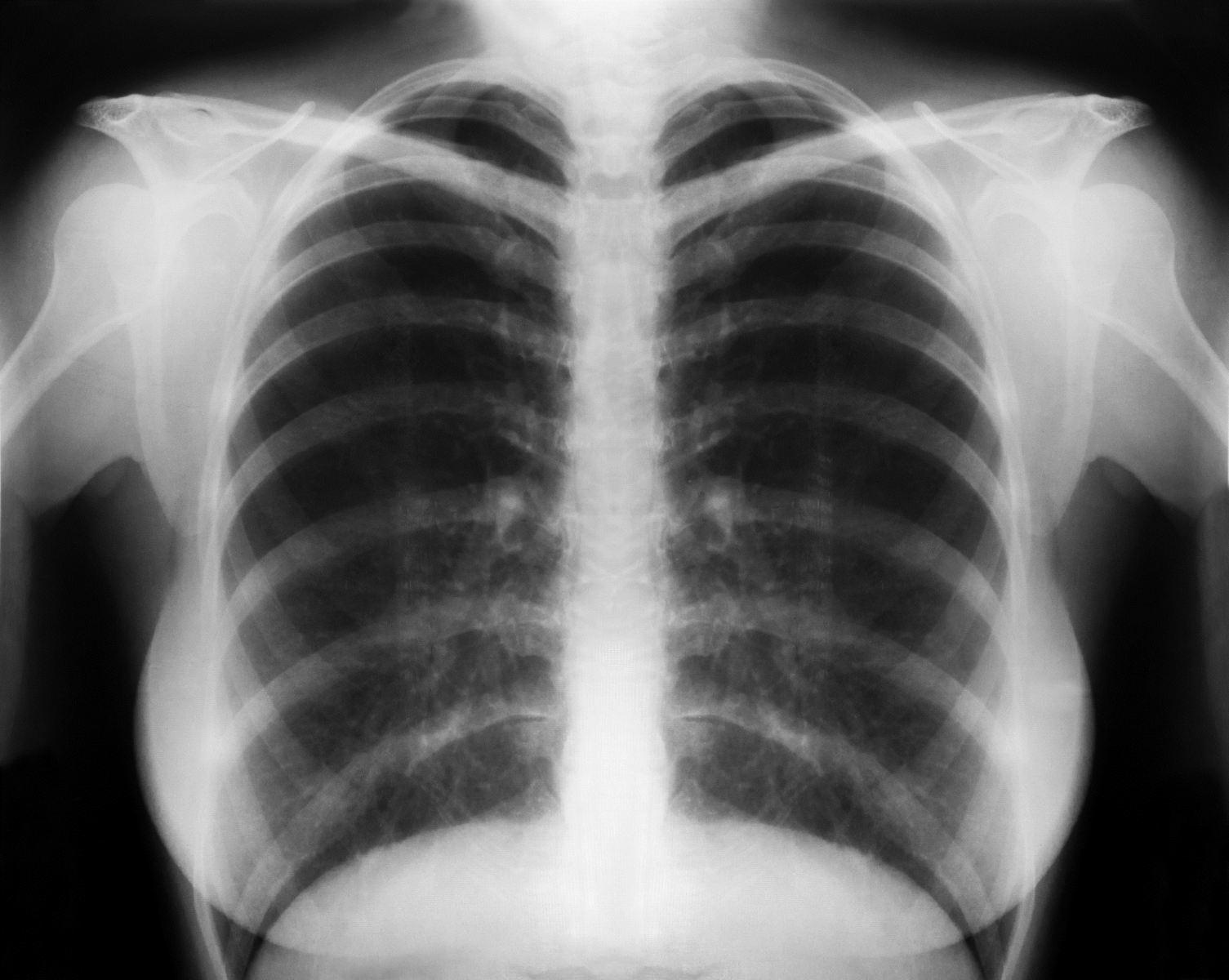 Flavorings-Related Lung Disease
