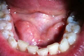Lovely Floor Of The Mouth Cancer