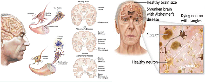 relationship between acetylcholine and alzheimers