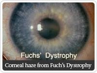 Fuchs dystrophy