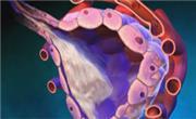 Gallbladder cancer