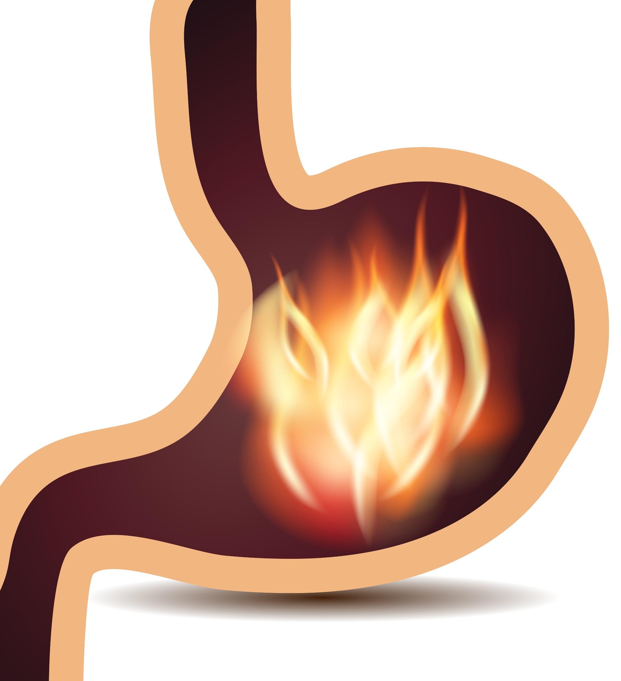 Gastritis No Erosiva