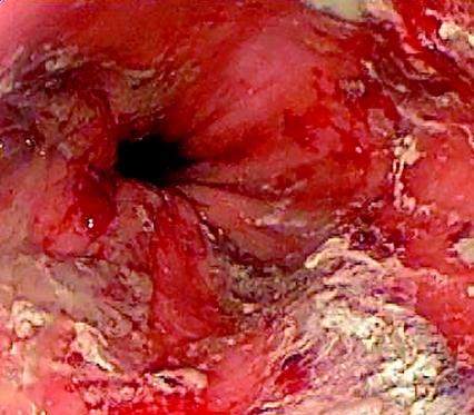 Gastrointestinal Bleeding Germany Pdf Ppt Case