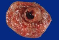Gastrointestinal stromal tumors (GISTs)